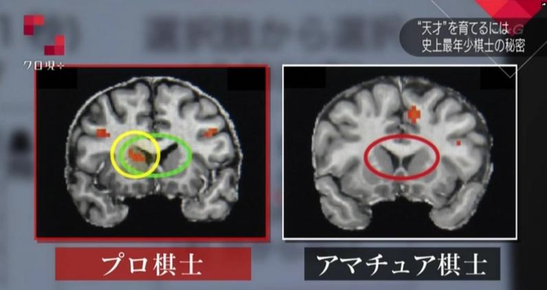詰将棋をするときのアマチュア棋士とプロ棋士の脳の使用箇所の違い
